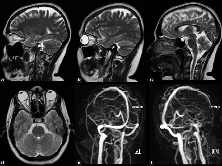 Для чего делают мрт головного мозга при гипертонии
