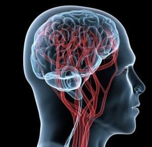 МРТ сосудов головы