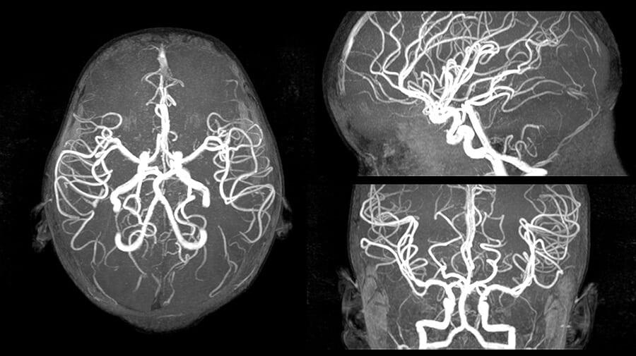 МРТ-снимок сосудов головного мозга ребенка