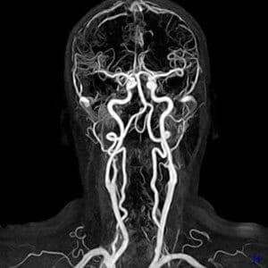 Контраст - специальное вещество, которое позволяет улучшить видимость мелких очагов заболевания и отдельных участков исследуемой области.