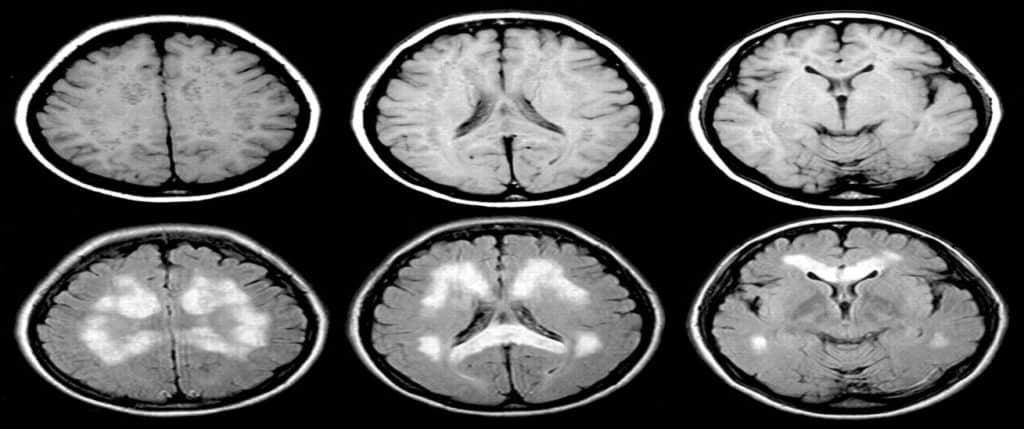 Визуализация нарушения кровоснабжения мозга с помощью МРТ