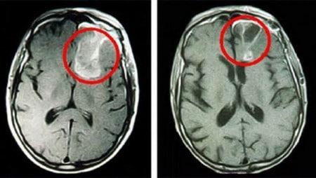Злокачественные опухоли мозга на МРТ