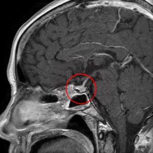 Микроаденома левой доли эндокринной железы на МРТ снимке